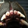3.zlomenina tří řezáků s odhalenou zubní dření