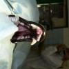 4. Pacient před operací-odstranění přední části spodní čelisti i s tumorem