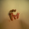 7.jednotlivé kořeny zubu a odlomená část korunky po vytržení