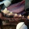 8.vcelku nenápadné postižení parodontu
